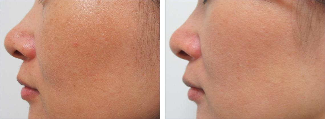レブライトSIの施術後 症例写真 頬
