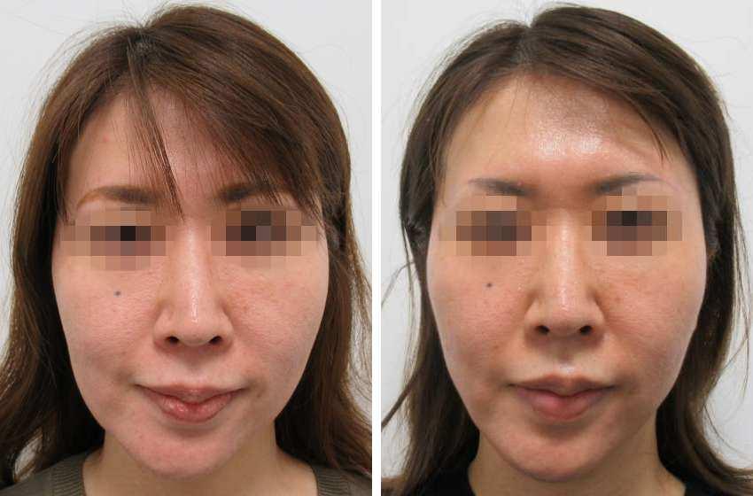 40代以降のTAC式ツヤ肌 コラーゲンリフト®の施術後 症例写真
