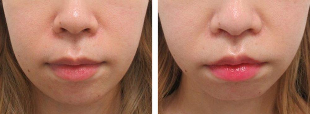 鼻筋・小鼻の症例写真 人中短縮は傷が目立つと言われたが 施術前 施術後
