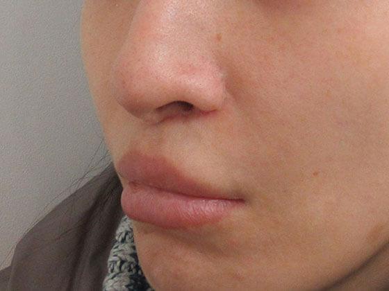 鼻尖4DノーズTAC式 人中短縮術の症例写真 施術後 斜め