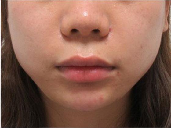TAC式 ツヤ肌コラーゲンリフトヒアルロン酸注射の症例写真 施術後